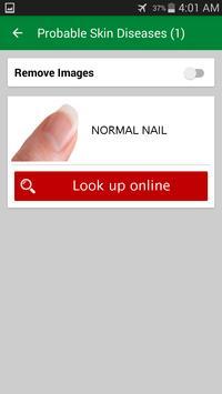 A.I Diagnose Skin (DEMO) screenshot 3