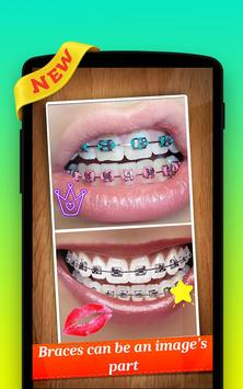 🌟 Braces Photo Editor Pro screenshot 1
