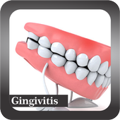 Recognize Gingivitis Disease icon