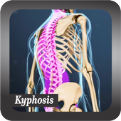 Recognize Kyphosis Disease icon