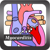 Recognize Myocarditis Disease icon