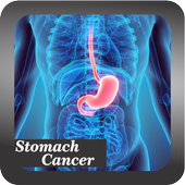 Recognize Stomach Cancer icon
