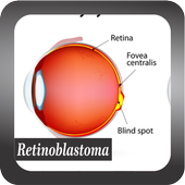 Recognize Retinoblastoma Disease icon