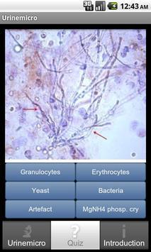 Urinemicro screenshot 1