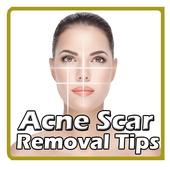 Acne Scar Removal Tips icon
