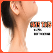 Skin tags icon