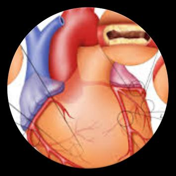 Pencegahan Dan Pengobatan Penyakit Jantung Koroner screenshot 1