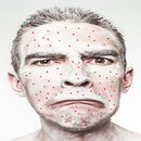 Pimple Removal Tips APK
