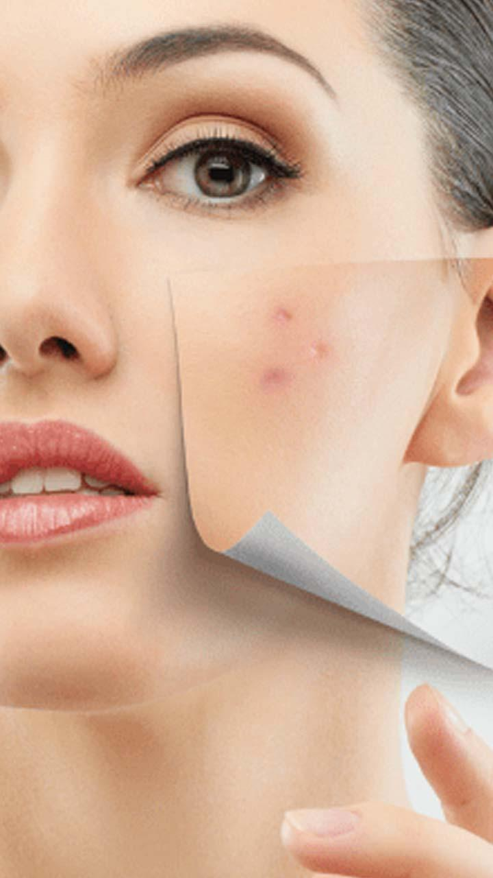 Acne Scar Removal Home Remedies For Android Apk Download
