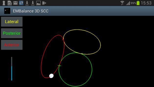 3D Semicircular canal screenshot 2