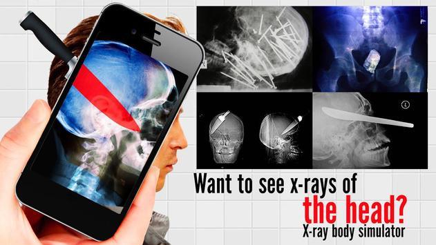 X-ray body simulator poster