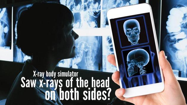 X-ray body simulator screenshot 2