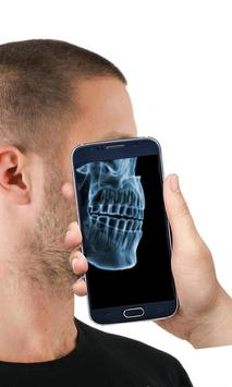 X-ray Human Scanner: Prank apk screenshot