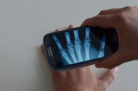 Xray Scanner Prank screenshot 6