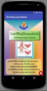 Hirschsprung disease poster