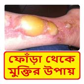 বিষ ফোঁড়া থেকে মুক্তির উপায় ~ Boil Treatment icon