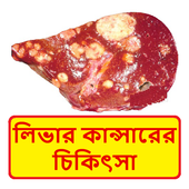 লিভার কান্সার চিকিত্সা ~ Liver cancer Treatment icon
