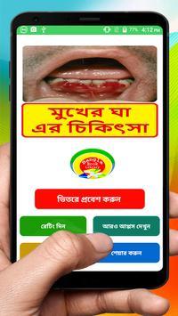 মুখের ভেতর ঘা রোগ এর চিকিৎসা ~ Scurvy disease poster