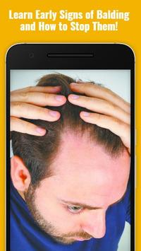 How to Stop Baldness Thinning Hair (Guide) poster