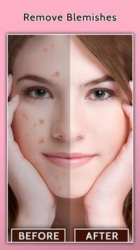 الوجه عيب مزيل - الجلد على نحو سلس وتجميل الوجه تصوير الشاشة 6