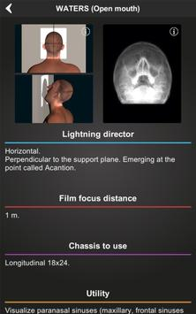 RX - Radiographic Positioning screenshot 8