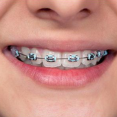 Braces Ideas icon