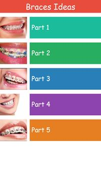 Braces Ideas screenshot 1