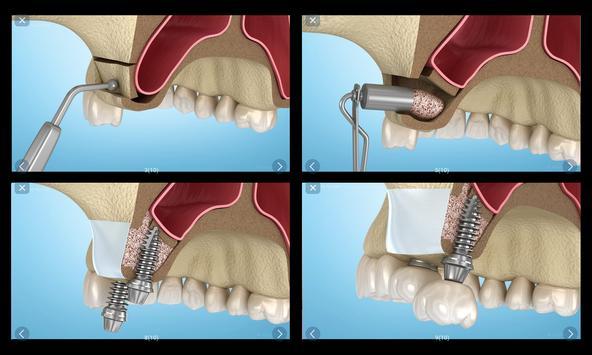 Стоматология - 3D иллюстрации для консультаций скриншот 20