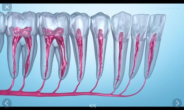 Стоматология - 3D иллюстрации для консультаций скриншот 9