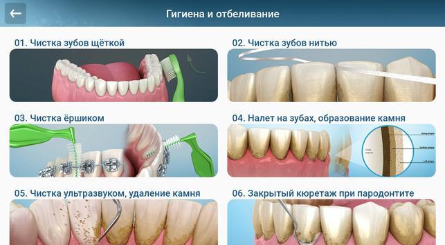 Стоматология - 3D иллюстрации для консультаций скриншот 10