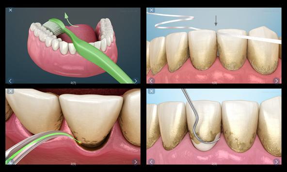 Стоматология - 3D иллюстрации для консультаций скриншот 11