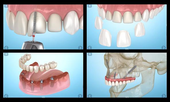 Стоматология - 3D иллюстрации для консультаций скриншот 12