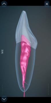 Стоматология - 3D иллюстрации для консультаций скриншот 2