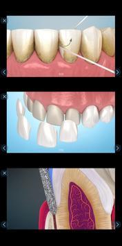 Стоматология - 3D иллюстрации для консультаций скриншот 4