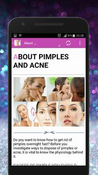 Skin Treatment - Get Rid Of Acne And Pimples Natur 스크린샷 1