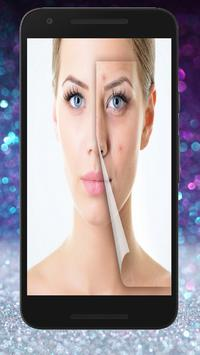 Skin Treatment - Get Rid Of Acne And Pimples Natur 스크린샷 4