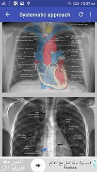 Chest X-Ray Interpretation 截图 3