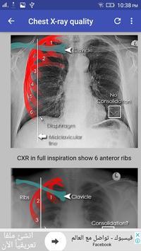 Chest X-Ray Interpretation 截图 12