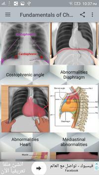 Chest X-Ray Interpretation 截图 2