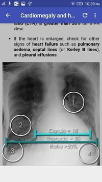 Chest X-Ray Interpretation 截图 7