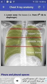 Chest X-Ray Interpretation скриншот 5