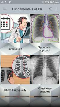Chest X-Ray Interpretation 截图 8