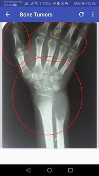 Musculoskeletal X- Rays screenshot 5