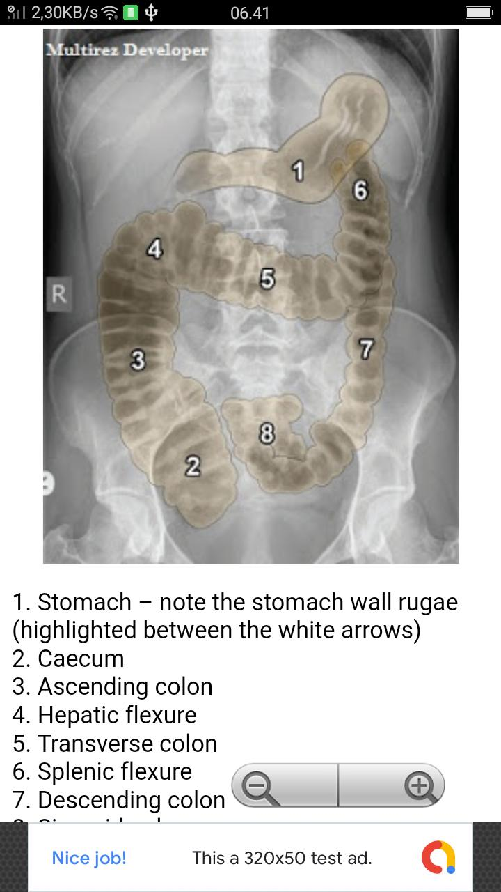 Abdominal X-Rays For Medical Students for Android - APK Download