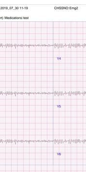 Dr.Cardio - ECG In Your Pocket screenshot 5