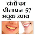 दातो का पीलापन - 57 घरेलू उपाय