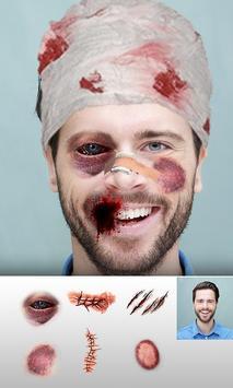 Injury Photo Editor 2019 Fake Injuries Maker screenshot 4