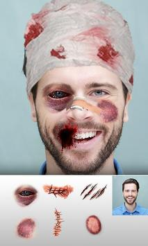 Injury Photo Editor 2019 Fake Injuries Maker screenshot 9