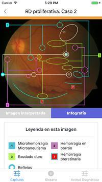ATLAS Retinopatía Diabética screenshot 2