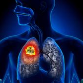 Cáncer de pulmón sintomas causas y tratamiento icon